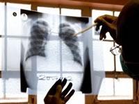 С 2011 года фтизиатрам Украины повысят зарплату